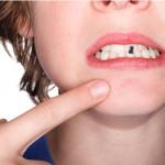 denti tatuaggio