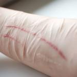 autolesionismo cutting